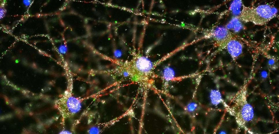 Un excès de protéines C4 (ici en vert dans une culture de neurones vu au microscope fluorescent) provoque une perte excessive des connexions synaptiques que l'on retrouve chez les schizophrènes. © Heather de Rivera/AP/Sipa