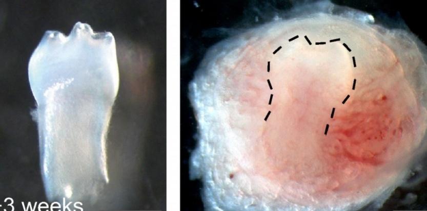 Des chercheurs chinois de l'Institut de biomédecine et de santé de Canton ont ainsi réussi à développer des dents à partir de cellules prélevées dans... de l'urine. Institut de biomédecine et de santé de Canton