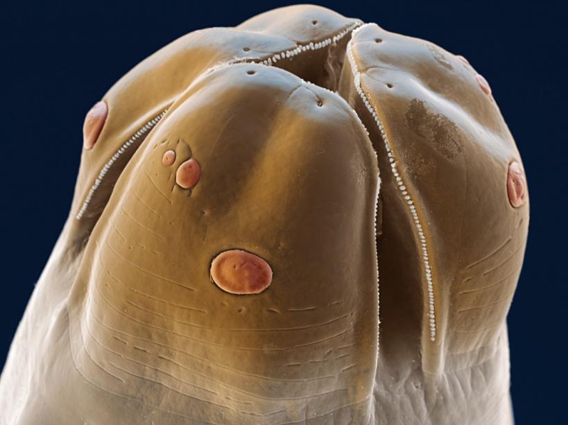 Le médicament contre les helminthes des lamblias et autre