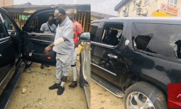 Photo of Veteran Actor, Clem Ohameze Attacked By Hoodlums In Uyo (Photos)