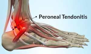 Tendonitis Peroneal Pain