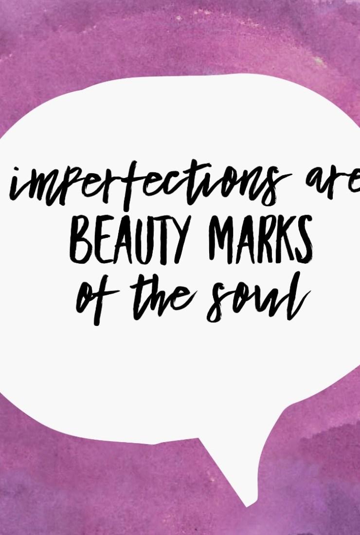Our imperfections make us unique