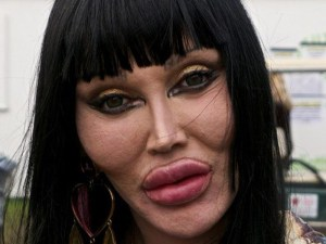 pete burns plastic surgery