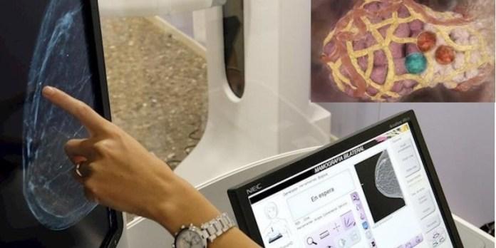 Google avanza inteligencia artificial vs cáncer