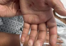Marlene exige justicia, su hija fue atacada con ácido y responsabiliza a su exmarido
