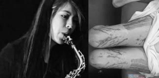 Saxofonista atacada con acido acusa a juez de ser cómplice de sus agresores