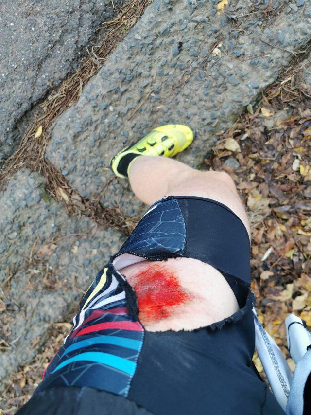 Pieter Heemeryck verwondde zich aan de heup op training in Ottenburg