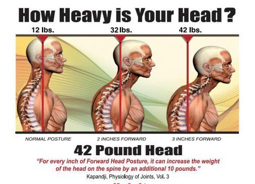 胸廓出口症候群