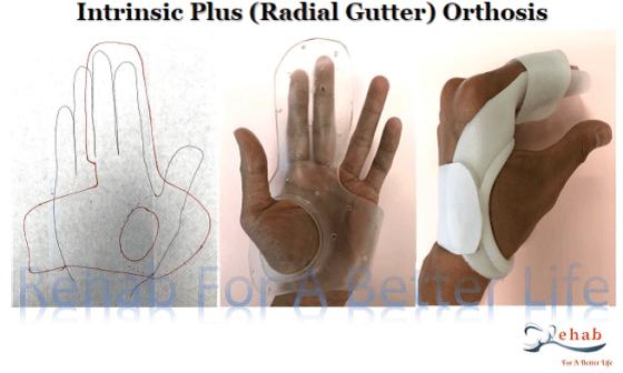 orthosis