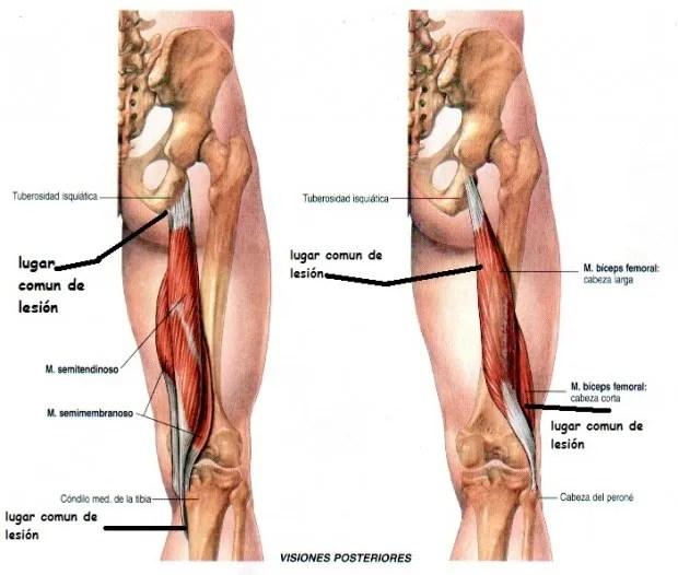 Rotura de isquiotibiales y bíceps femoral. CAUSAS Y TRATAMIENTO