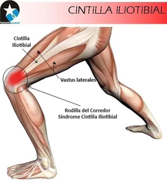 Rodilla del corredor: Síndrome de la Cintilla Iliotibial (Caso ...