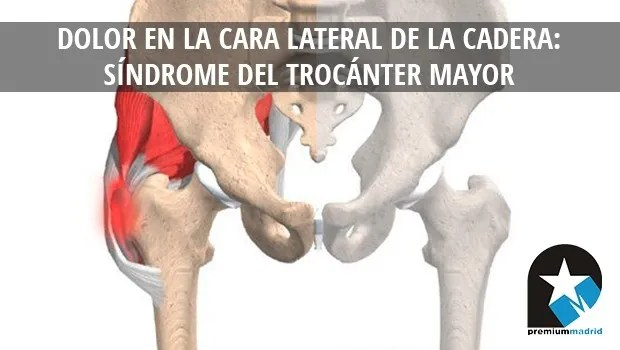 Dolor en la cara lateral de la cadera: Síndrome del trocánter mayor