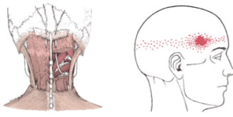 cervical paraspinal, referral, trigger point, pain