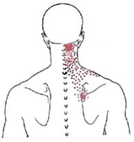 cervical paraspinals, trigger points, referral, pain