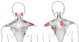 mid trapezius, lower trapezius, referral, trigger points, pain