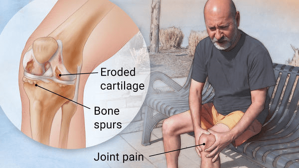 knee pain, osteoarthritis, arthritis, walking, pain