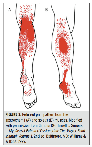 soleus, gastrocnemius, trigger point treatment, referred pain, plantar fasciitis, physical therapy
