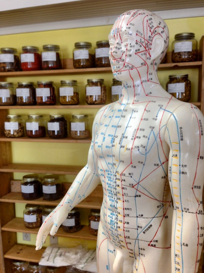 acupuncture, dry needling, trigger points