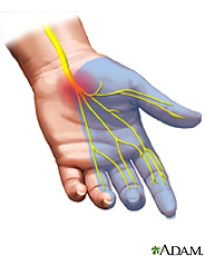 carpal tunnel referral, carpal tunnel, infraspinatus, physical therapy