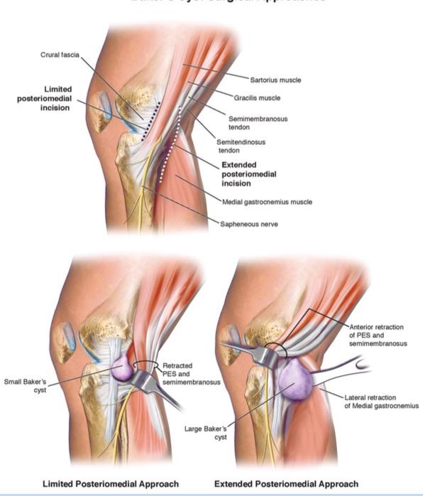 Baker's Cyst. Swelling Behind My Knee. • Rehab Renegade