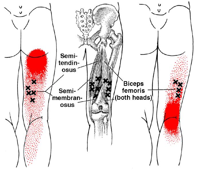 Biceps Femoris, Semitendinosus, Semimembranosus