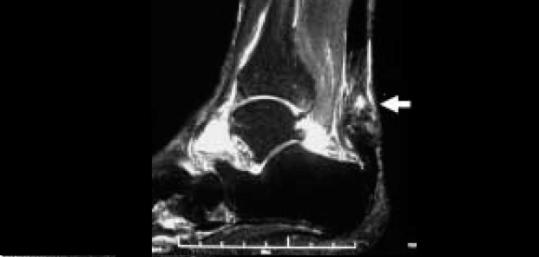 アキレス腱炎|MRI