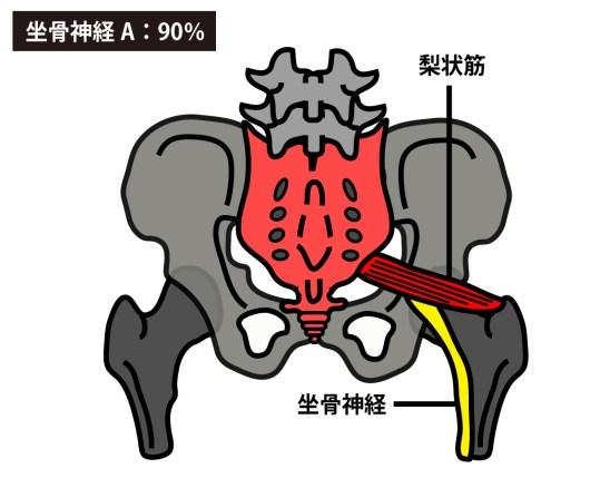 坐骨神経は梨状筋の下を通過する