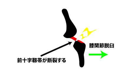 膝関節脱臼