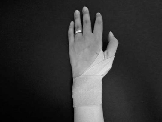 手首,テーピング,方法,痛み