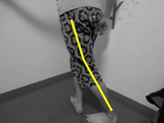 脱臼肢位,人工股関節,前方進入,禁忌動作,伸展,内転,外旋