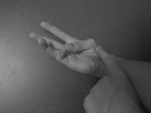 母指対立筋