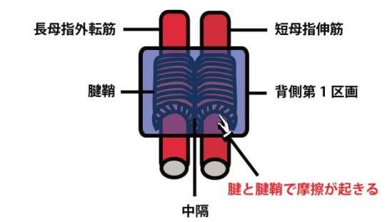 腱鞘炎の手術①