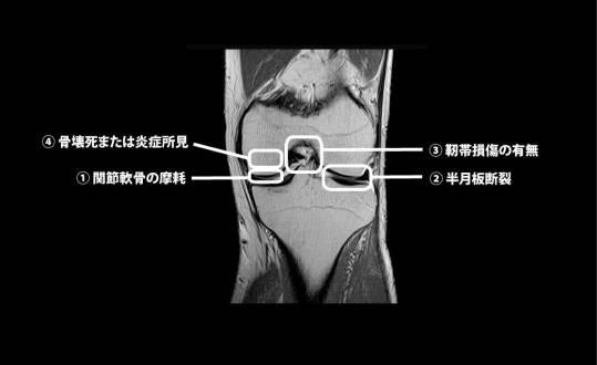 膝関節のMRI画像|チェックポイント