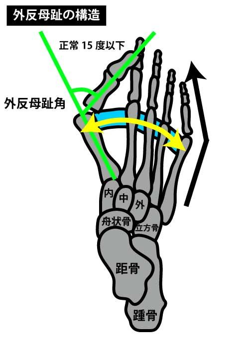 足部の構造|外反母趾