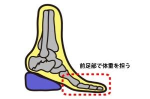 踵骨骨折|ヒールサポート