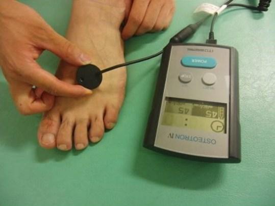 中足部骨折の超音波治療