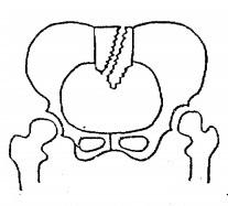 仙骨骨折,骨盤骨折,種類,重症