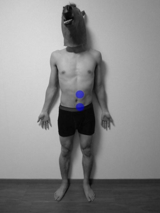 多裂筋,トリガーポイント,痛み,部位,関連痛,前面