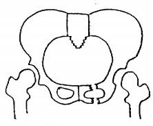 Conollyの重症度分類,片側恥骨弓骨折,軽度