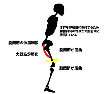 股関節屈曲位歩行