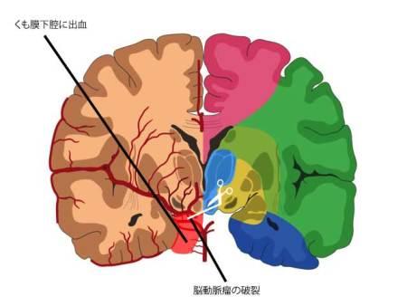 くも膜下出血の図