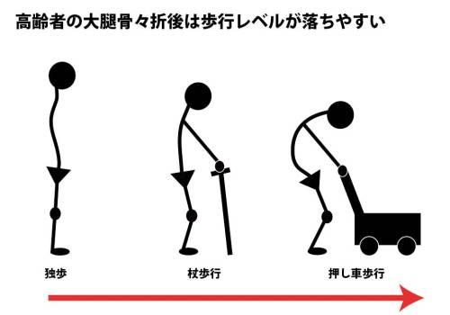 大腿骨々折後の歩行レベル