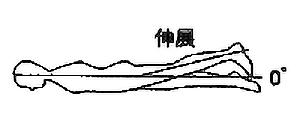 股関節伸展の関節可動域(参考値)