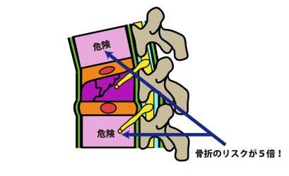 脊椎圧迫骨折②