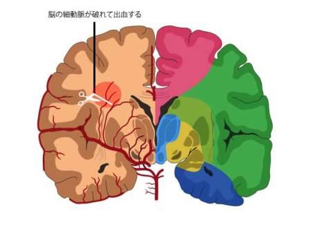脳出血の図