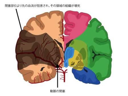 脳梗塞の図