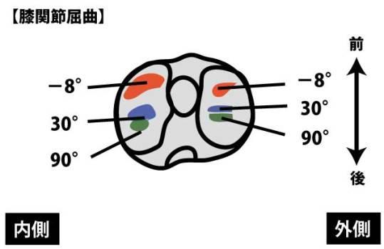 膝関節の屈曲角度と圧迫部位