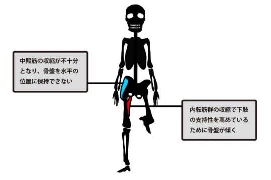 トレンデレンブルグ歩行と股関節内転筋