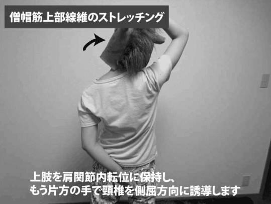 僧帽筋上部線維のストレッチング