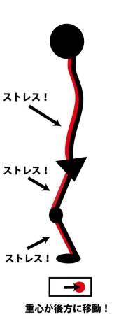 膝,屈曲拘縮,伸展制限,筋疲労,負荷